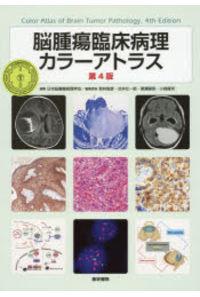 脳腫瘍臨床病理カラーアトラス